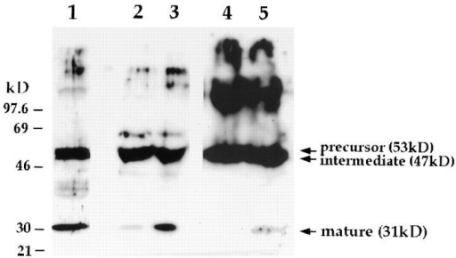 Elevation in [Ca2+]i induces secretion of the 31-kD lysosomally processed form of cathepsin D. Rabbit anti–cathepsin  D antibodies were used to probe a Western blot containing a lysate and concentrated supernatants of IMR-90 human fibroblasts. (Lane 1) total lysate; (lane 2) concentrated supernatant of  cells treated with PBS for 5 min; (lane 3) concentrated supernatant of cells treated with 10 μM ionomycin for 5 min; (lanes 4 and  5) concentrated supernatants of SLO-permeabilized cells incubated for 5 min in buffers containing 0 or 1 μM Ca2+, respectively. Different ECL exposures were performed for each treatment to allow visualization of the secreted mature 31-kD  cathepsin D band.