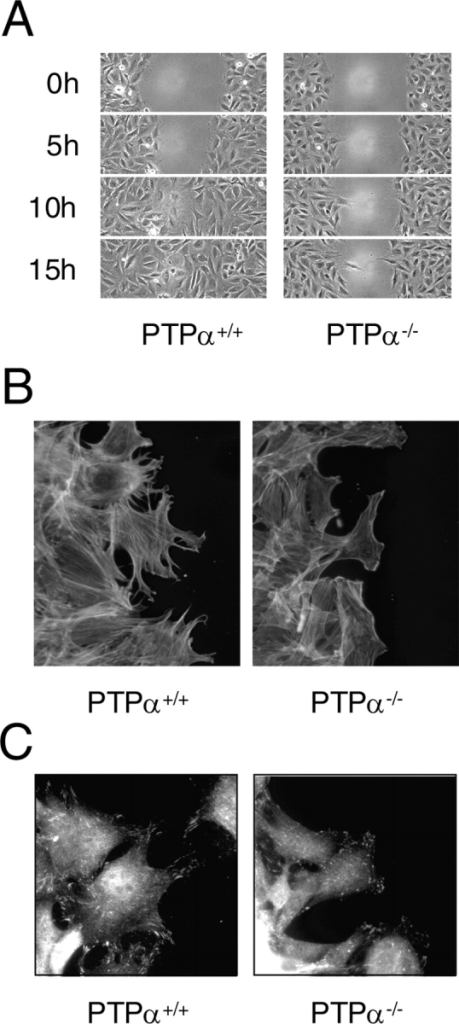 Defective migration of PTPα−/− cells. (A) Delayed migration of cells lacking PTPα. The migration of PTPα+/+ and PTPα−/− fibroblasts into an empty area of the culture dish was followed by time-lapse video microscopy. Fields at the indicated times are shown. (B) 6 h after wounding, cells at the migrating edge were stained for actin with Alexa Fluor 488–conjugated phalloidin. (C) Cells at the leading edge were stained with anti-phospho-Tyr397 FAK antibody just before wound closure of the PTPα+/+ cells.