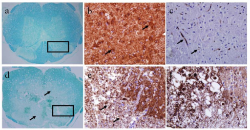 LFB, NSE and CD34 stained contiguous slices at the injury epicenter and at a normal section rostral to the epicenter. In the rostral segment (top row), LFB (a) and NSE (b) stains show normal myelination and intact neurons, and CD34 stain (c) shows intact vasculature. At the epicenter (bottom row), LFB (d) and NSE (e) stains show diffuse demyelination and damaged neurons, and the corresponding CD34 stain (f) shows damaged vasculature with leaky BSCB.