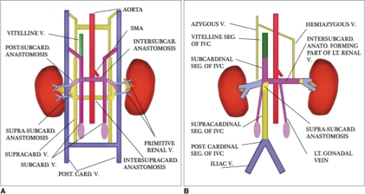 Schematic diagram showing embryogenesis of inferior vena cava and renal veins.A. Three pairs of veins (posterior cardinal → subcardinal → supracardinal veins) appear in succession with regression of some portions and persistence of others. Renal collar is formed by intersupracardinal anastomosis dorsally, intersubcardinal anastomosis ventrally and supra-subcardinal anastomosis laterally. Primitive dorsal and ventral renal veins drain into supra-subcardinal anastomoses. Both dorsal renal veins usually regress.B. After completion of embryogenesis. Right renal vein is formed by ventral limb of primitive right renal vein. Left renal vein develops from intersubcardinal anastomosis, left supra-subcardinal anastomosis and ventral limb of primitive left renal vein. Dorsal intersupracardinal anastomosis regresses.