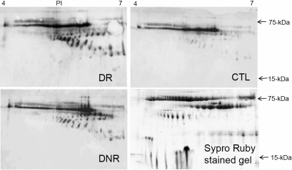 2D western blotting images of AGE modified tear proteins from DR, DNR, and CTL samples and a Sypro ruby stained 2D gel image of a tear sample.