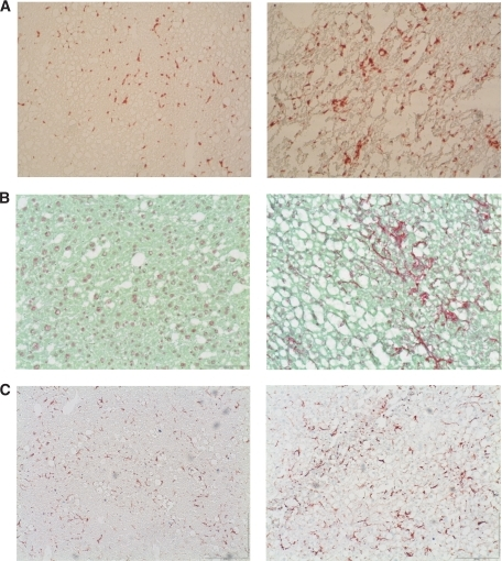 (Immuno)histochemical staining confirms enhanced inflammation and early fibrosis in HFH mice. A: Immunohistochemical staining of macrophage activation in representative liver sections of HFL (left panel) and HFH (right panel) mice using antibody against the specific macrophage marker Cd68. B: Collagen staining using fast green FCF/sirius red F3B. C: Staining of stellate cell activation using antibody against GFAP. (A high-quality digital representation of this figure is available in the online issue.)