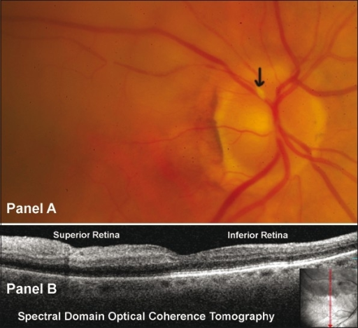 (A) Right Eye fundus photo revealing whitening of the superior retina with a calcified plaque at the disc within the supero temporal artery (arrow); (B) Spectral domain optical coherence tomography OCT/SLO, OTI Ophthalmic Technologies Inc, Ontario, Canada) revealed hyperreflectivity and increased thickness of the inner retinal layers in the superior compared to inferior retina. Note the decreased reflectivity of the outer retinal layers (including retinal pigment epithelial layer) in the superior retina as compared to inferior retina probably due to optical shadowing.