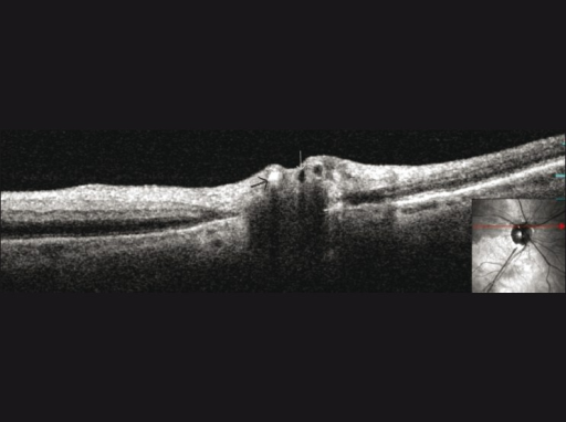 Spectral domain optical coherence tomography through optic disc revealed blocked artery with highly reflective material and optical shadowing likely due to calcified embolus (black arrow). There are adjacent vessels without blockage (white arrow)