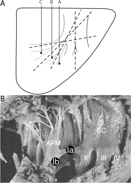 A – The angles of branching of the septomarginal trabecula from the interventricular septum. Group A from 0 to 30 degrees, group B from 31 to 60 degrees, group C from 61 to 90 degrees. B – Interior of the right ventricle, division of the crista supraventricularis into four branches; sub-type IVb of the septomarginal trabecula (♂, 38 yrs)APM – anterior papillary muscle, SC – lower part of the crista supraventricularis, Ia in black circle – septo-papillary segment of the septomarginal trabecula, Ib in black circle – papillomarginal segment of the septomarginal trabecula, II – second branch of the SC, III – third branch of the SC, IV – fourth branch of the SC