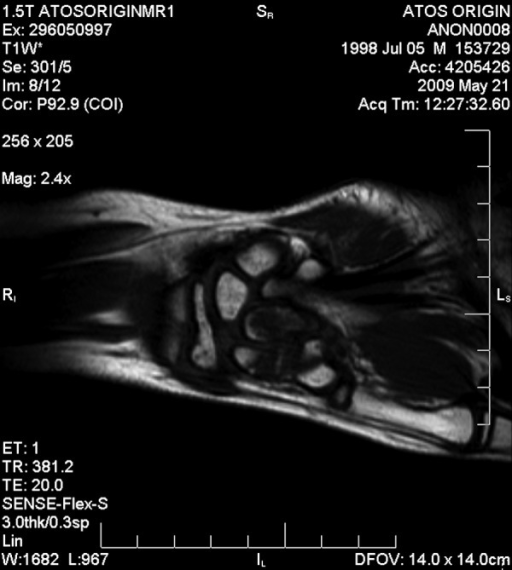A 12-year-old boy, NMR examination performed 6 weeks after trauma. T1W sequence, coronal plane, posttraumatic bone marrow edema, attenuated signal detected within scaphoid and capitate bones.