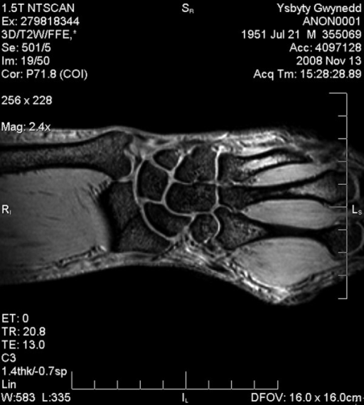 A 57-year-old man after wrist trauma, NMR examination performed one month after trauma. 3D/T2W/FFE*sequence, coronal plane: fracture within the distal aspect of the radius.
