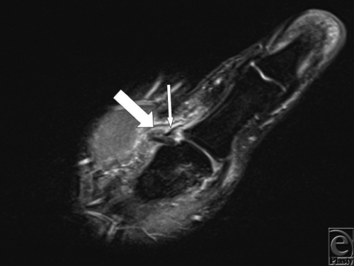 Coronal T2 weighted fat-suppressed MRI of the thumb dem | Open-i