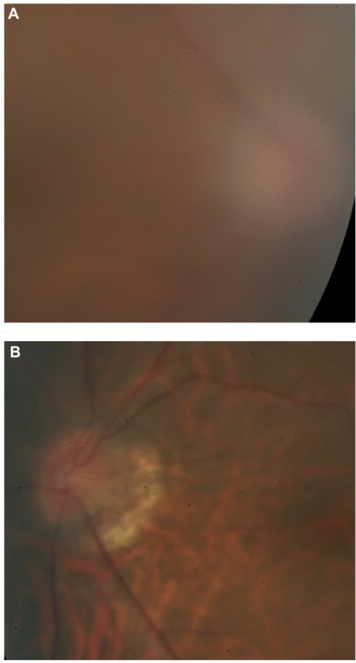 steroid dose for optic neuritis
