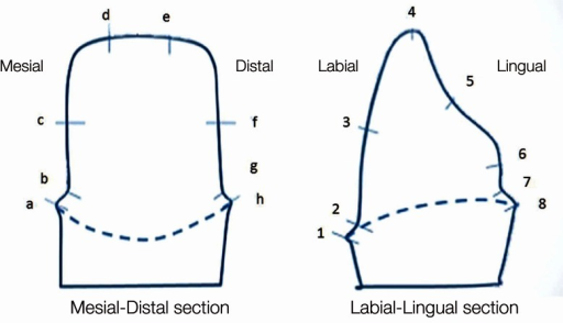 Reference points to measure the thickness of fit checker (Left: mesio-distal, Right: labio-lingual).