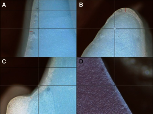 Measurement of thickness of Fit checker® at each reference point (A: labial reference point, B: incisalreference point, C: marginal reference point, D: lingual reference point).