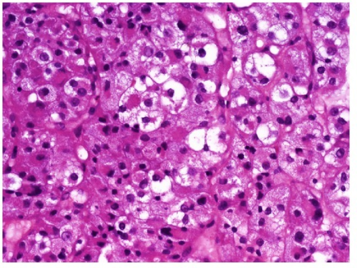 The cytoplasm of the tumor cells was broad and clear or eosinophilic. The nuclei were round and uniform, frequently with a single nucleolus.
