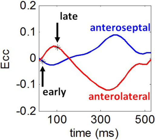 Estimation of the time to mechanical activation. Strain-time curves are shown for the anteroseptum (blue) and the anterolateral wall (red). The onset of contraction was defined as the first time where the slope of the strain curve is negative. The onset of contraction was early for the anteroseptum. In contrast, the anterolateral wall underwent early stretch, which was followed by a delayed onset of contraction. Regionally varying times of the onset of contraction were used to create mechanical activation time maps.