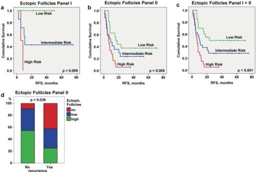 Prognostic effect of ectopic follicular structures allocated at the tumor – liver border.Kaplan-Meier estimates for patients stratification based on the ectopic follicle score at the border (a–c). Kaplan-Meier curves for RFS for panel I, panel II, and panel I+II show patient stratification into low (high number of follicular structures), intermediate (low number of follicular structures) and high risk (no follicular structures) groups; p value of the log-rank trend test is indicated. Panel I: low risk n = 5, intermediate risk n = 7, high risk n = 2; panel II: low risk n = 16, intermediate risk n = 17, high risk n = 18; panel I+II: low risk n = 21, intermediate risk n = 24, high risk n = 20. (d) Comparative assessment of contribution of no, low, and high ectopic follicle score to the total quantity for patient sub-groups without (No) and with (Yes) disease recurrence as estimated at the time point of 24 months where no censoring has occurred; p value of chi-square trend test is shown.
