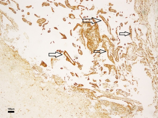 Patient n.1: Kluver–Barrera staining: glial septum inside the white matter cysts. Some glial septa are marked with arrows. This staining highlights myelin fibers.