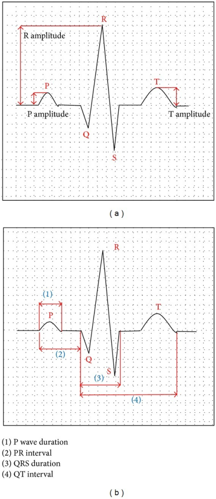 PQRST waveforms from an electrocardiography device.