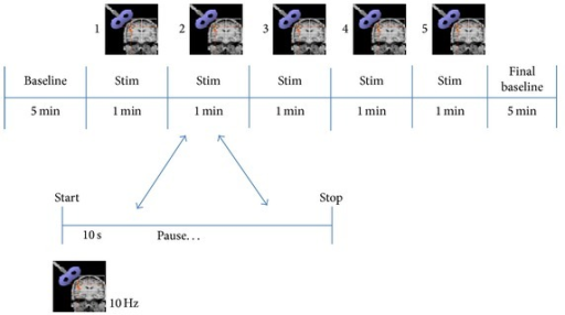 rTMS protocol implemented for all subjects. Note that 5 stimuli were applied during intervals of 1 minute of duration.