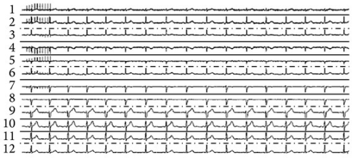 12-lead ECG recording. Note: stimuli artifact (1 sec, 10 Hz) is seen at the beginning of recording in several leads.