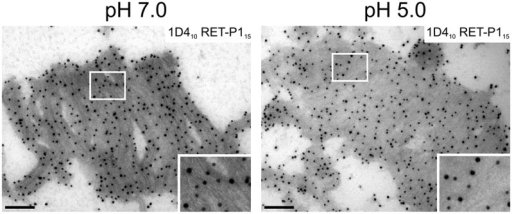 Reduced pH does not affect binding to the C-terminal cytoplasmic rhodopsin epitope. POS were incubated in neutral (pH 7.0) or low (pH 5.0) pH solution and were prepared for cryo-immuno-electron microscopy. Ultrathin sections were labelled with 1D4 (PAG, 10 nm) and RET-P1 (PAG, 15 nm). The pH did not affect labelling with the antibody against the cytoplasmic 1D4 epitope. Areas outlined in white are shown at higher magnification in the lower-right corner. Scale bars: 200 nm.
