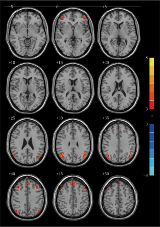 Statistical maps of voxel t-values of voxel-mirrored homotopic connectivity comparisons of depression patients before and after electroconvulsive therapy. The numbers at the top left of images refer to the z-coordinates in Montreal Neurological Institute space. The threshold has been set at a corrected P<0.05 (corrected with P<0.01 for each voxel and a cluster volume ⩾32 voxels) and the t-score bar is shown at the right of the map. The left side of the each image corresponds to the right hemisphere of the brain and vice versa.