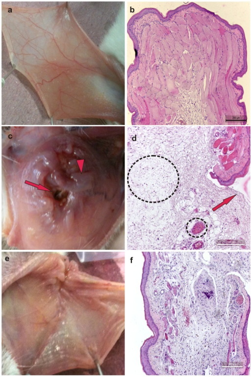 Macroscopic and microscopic aspects of healthy hamster cheek pouches (a and b) or cheek pouches from animals subjected to 5-fluorouracil (5-FU)-induced oral mucositis and that received topical applications of the vehicle HPMC (c and d) or GSNO (0.5 mM) (e and f) observed on day 14.Oral mucositis was induced by i.p. dministration of 5-fluorouracil followed by mechanical trauma of the cheek pouch. Animals received topical applications of S-nitrosoglutathione (0.5 mM HPMC/GSNO) or vehicle only (HPMC) at 1 h prior to 5-FU and every 12 h thereafter for 14 days. Each cheek pouch was everted and photographed, and samples were removed and processed for hematoxylin and eosin staining (100× magnification). Details: in Figure 2c, macroscopic edema (arrowhead) and vasodilation (dotted line) are shown; in Figure 2d, microscopic edema (larger circled) and severe vasodilation (smaller circled) are shown. Arrow = ulcerations.
