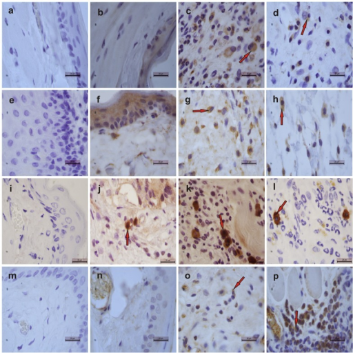 Representative examples of iNOS (1st row), IL-1β (2nd row), TNF-α (3rd row) and TGF-β RII (4th row) immunostaining on day 14 in tissues from cheek pouches of hamsters subjected to 5-FU-induced oral mucositis.Staining was performed using cheek pouches from healthy animals (b, f, j, n) and animals subjected to 5-FU-induced mucositis that received topical applications of S-nitrosoglutathione (GSNO; 0.5 mM; d, h, l, p) or saline (c, g, k, o). Negative controls were samples of cheek pouches where the primary antibody was replaced with PBS-BSA (5%); no immunostaining was detected (a, e, i, m). Magnification, ×1000.
