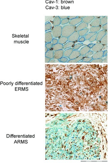 Expression of caveolins in RMS tumours. Double immunostain showing that in skeletal muscle Cav-1 and Cav-3 mark satellite cells and the plasmalemma of myofibres, respectively. In RMS, Cav-1 and Cav-3 are predominantly associated to immature and mature tumours, respectively. Bars = 50 μm.