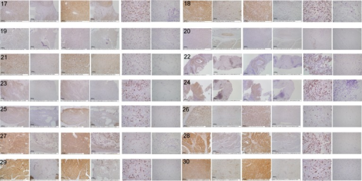 Digital images of stained canine tissue sectionsTissue samples were immunohistochemically stained for TCII (TCN2 antibody, 10x objective), TCII-R (CD320 antibody, 10x objective) and Ki-67 (MIB-1 antibody, 40x objective). Tissue sections for each case are shown from left to right as follows: TCII tumor, TCII adjacent normal, TCII-R tumor, TCII-R adjacent normal, Ki-67 tumor, Ki-67 adjacent normal. Refer to Figure 1 legend for x-axis case identification. High resolution images of case 30 are presented in Supplemental data.