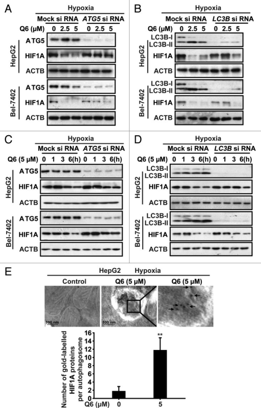 Figure 4. ATG5 and LC3B are required for Q6-induced autophagy and HIF1A degradation. (A and B) After transfection with specifically targeted siRNA (ATG5 or LC3B) for 36 h, HepG2 and Bel-7402 cells were treated with Q6 (0, 2.5, 5 μM) for 6 h, after which HIF1A, ATG5, and LC3B protein levels were measured by western blot analysis. ACTB was measured as the loading control. (C and D) After transfection with specifically targeted siRNA (ATG5 or LC3B) for 36 h, HepG2 and Bel-7402 cells were treated with Q6 (5 μM) for different times, after which HIF1A protein levels were measured by western blot analysis. ACTB was measured as the loading control. (E) HepG2 cells were treated with Q6 (0, 5 μM) for 6 h under hypoxic conditions, after which HIF1A protein was detected by immunoelectron microscopy analysis. Arrows indicate HIF1A. In the lower panel, the number of immuno-gold labeled HIF1A is presented for HepG2 cells. Twenty cross sections were counted in each experiment and a total of 40 autophagosomes were detected. Data shown are means ± SD of 3 independent experiments. **P < 0.01 compared with the control group.