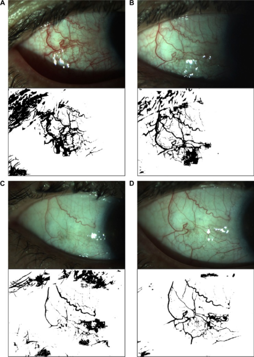 Bulbar conjunctival vascularization area.Notes: The upper row images are the conjunctival vascularization pictures obtained with an IM900 slit lamp. The lower row images are the correspondent vascular pictures analyzed with Image J software. (A) is at 3 days before injection. High vascular density with a wide diameter could be observed. (B) refers to 1 week after injection. (C) is at 1 month after injection. (D) is at 3 months after injection. The vasculars in (B–D) are much thinner in diameter with lower density. All the dark pixels resulted from the light reflection were excluded from calculation. The pixels of the eyelid and eyelash were excluded.