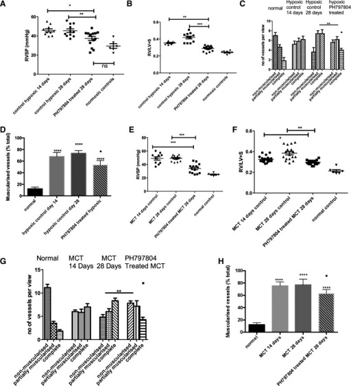 PH in a reversal strategy in 2 in vivo animal models by administration of PH-797804, a more selective p38 MAPKα inhibitor. A and B: animals were exposed to CH and after 2 wk p38 MAPK inhibition was commenced with daily injections. Hemodynamics and RV hypertrophy (RVH) were measured after 4 wk. Data represent mean values ± SE. *P < 0.05; **P < 0.01 for A. **P < 0.01; ***P < 0.001, for B. C: the lungs were removed after experiment and sections (5 mm) were cut. These were stained with α-smooth muscle actin and the vessels <80 mm were analyzed for degree of muscularization. Five to 10 random fields (×40) were analyzed with 3 slides per animal. The vessels were categorized as completely, partially, or nonmuscularized. Groups analyzed by ANOVA for overall change with posttest analysis; n = 10 animals. **P < 0.01; ■P < 0.05 for complete muscularized group in drug-treated vs. day 14 hypoxic control. D: lungs were removed after experiment and sections (5 mm) cut. These were stained with α-smooth muscle actin and the vessels <100 mm were analyzed for degree of muscularization. Five to 10 random fields (×40) were analyzed with 3 slides per animal. The vessels were categorized as muscularized or nonmuscularized and the percentage of muscularized vessels calculated. Groups analyzed by ANOVA for overall change with posttest analysis; n = 10 animals. ****P < 0.0001; ■P < 0.05 for hypoxic drug-treated vs. day 14 hypoxic control. E and F: animals were injected with MCT and after 2 wk p38 MAPK inhibition was commenced with daily injections. Hemodynamics and RVH were measured after 4 wk. Data represent mean values ± SE. Total animals n = 14–15 per group. ***P < 0.001 for E. *P < 0.05; **P < 0.01 for F. G: the lungs were removed after experiment and sections (5 mm) cut. These were stained with α-smooth muscle actin and the vessels <80 mm were analyzed for degree of muscularization. Five to 10 random fields (×40) were analyzed with 3 slides per animal. The vessels were categorized as completely, partially or nonmuscularized. Groups analyzed by ANOVA for overall change with posttest analysis; n = 10 animals. **P < 0.01; ■P < 0.05, for complete muscularized group in drug-treated vs. day 14 hypoxic control. H: lungs were removed after experiment and sections (5 mm) cut. These were stained with α-smooth muscle actin, and the vessels <100 mm were analyzed for degree of muscularization. Five to 10 random fields (×40) were analyzed with 3 slides per animal. The vessels were categorized as muscularized or nonmuscularized, and the percentage of muscularized vessels was calculated. Groups analyzed by ANOVA for overall change with posttest analysis; n = 10 animals. ****P < 0.0001; ■P < 0.05 for drug-treated vs. day 14 MCT control.