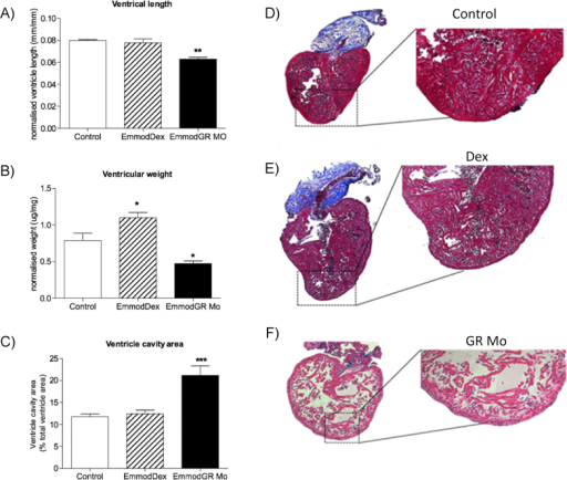 Effects of embryonic glucocorticoid manipulation on adult heart structure Long-term impact of embryonic glucocorticoid receptor (GR) manipulation with either GR agonist dexamethasone (Dex) [100 μM], or targeted translational GR knockdown using morpholino (GR Mo) was assessed in the heart of 120 day post fertilisation (dpf) adult zebrafish. Structural analyses of A) ventricle length, B) weight and C) cavity area were carried out. Data are n = 8 hearts per group, displayed as mean ± SEM analysed by one-way ANOVA with Dunnett's post hoc comparison (*p < 0.05, **p < 0.01, ***p < 0.001). D–F) Histology (haematoxylin and eosin staining) in adult fish hearts D) Controls (Vehicle only control shown here), E) Dex, F) GR Mo.