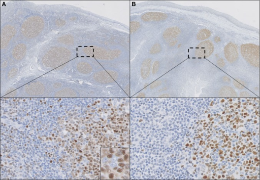 Histopathology of a tonsil with reactive follicles. TOX (a) is expressed in reactive follicles, predominantly in centrocytes (inset) in a pattern similar to BCL6 (b), but also in some scattered lymphocytes in the interfollicular areas (selected regions). (a, b ×100, selected regions in a and b ×200 and inset in a ×400)