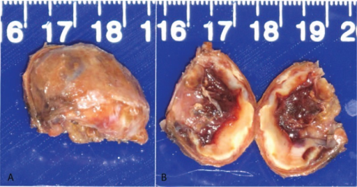 Macroscopic photographs of the appearance (A) and the contents (B) of the cyst. The cyst was about 2.6 × 2 × 2 cm in size.
