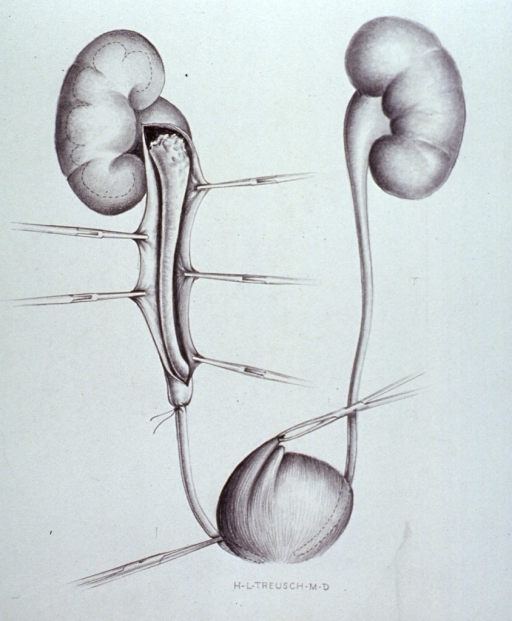 <p>Illustration showing the surgical procedure for the removal of a cyst.</p>