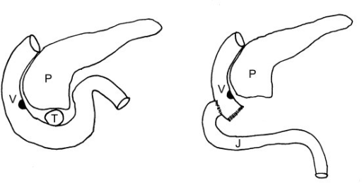 Operative technique. Reconstruction by a lateroterminal duodenojejunostomy at the level of the ampulla of Vater. P: pancreas, V: ampulla of Vater, T: tumor, J: jejunum.