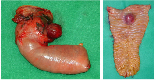 Macroscopic appearance of the resected specimen. The distance to the proximal resection margin was 0.5 cm. A great portion of the tumor was located subserosal. The duodenal mucosa was bulged by the sumucosal tumor.