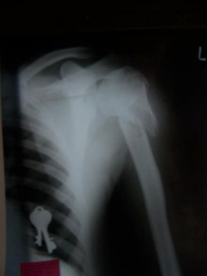 Radiograph showing the fracture of the proximal humerus
