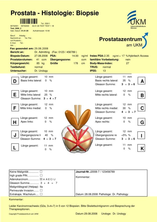 "Prostate biopsy form. In the upper part fax date (""Fax gesendet am""), the time of biopsy (""Biopsie Datum""), PSA and prostate volume (""Prostatavolumen"") are recorded. Up to 12 specimens can be documented with length of the biopsy core (""Länge gesamt""), percentage tumour in biopsy core, and Gleason score (""Gleason Summe""). The yellow part is provided by urologists, the rest is documented by pathologists."