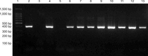 PCR amplication of Helicobacter (H.) spp. genus-specific 16S rRNA gene. DNA molecular weight standard marker (Lane 1), H. felis positive control (ATCC 49179) of DNA product at 400 bps (Lane 2), negative control (Lane 3), feces of feral cats no.92-101 (Lanes 4-13) are shown.