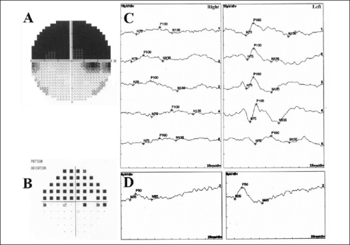 (A, B) Automated perimetry showing superior altitudinal visual field defect on the gray-scale and pattern deviation probability map. (C) Pattern visual evoked potentials testing showing even unrecordable P100 peaks. (D) Pattern electroretinogram testing showing reduced P50 peak amplitude in the right eye