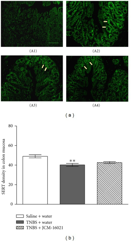 Effect of JCM-16021 on mucosal SERT expression in PI-IBS rats. (a) shows the immunofluorescence micrographs of (A1) negative control (primary antibody omitted) and the positive SERT expressions (arrowhead) in the mucosa of (A2) normal rats, (A3) PI-IBS rats, and (A4) high dose JCM-16021 treated rats (Scale bar, 200 μm). Statistical analysis of intensity of SERT immunoreactivity is shown in (b). Data are shown as mean ± S.E.M., n = 5 per group. **P < 0.01 versus normal rats (t-test).