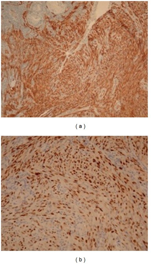 Immunohistochemical analysis showing the positivity for CD31 and CD34 (a) and the strong immunoreactivity for HHV-8 in the nuclei (b).