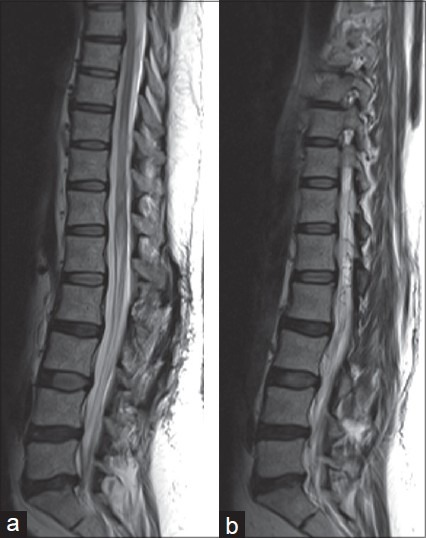T2-weighted MRI of the spine: (a) midline sagittal image showing less-intensive swelling but persistent edema signal on the conus medullaris; (b) parasagittal image on the left showing dilated perimedullary veins indicative of persistent SDAVF
