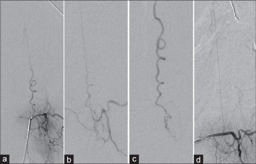 (a) DSA of the left L2 artery showing a dural arteriovenous fistula at the left foramen L2–L3 and the artery of the lumbar enlargement. (b) Superselective DSA via the microcatheter at the origin of the AA. (c) Superselective DSA via the microcatheter at the arteriovenous shunt just before embolization. (d) DSA of the left L2 artery after fistula embolization showing intact AA