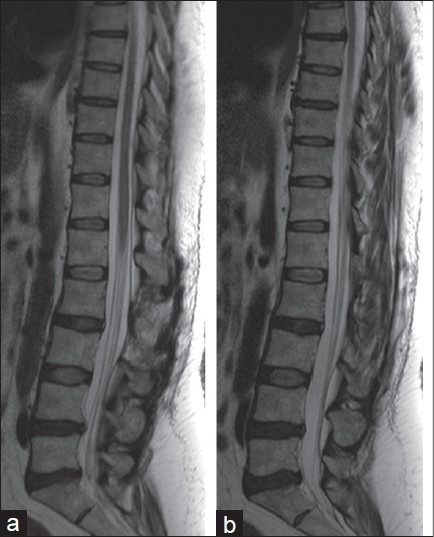 (a, b) Follow-up MRI scan taken 68 months after the last embolization. Note substance reduction of the spinal cord with visible central canal and no evidence of medullary edema or dilated perimedullary veins