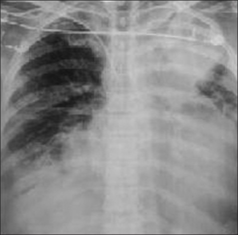 Chest X-ray on the 9th day of admission shows collapse of the left upper lobe