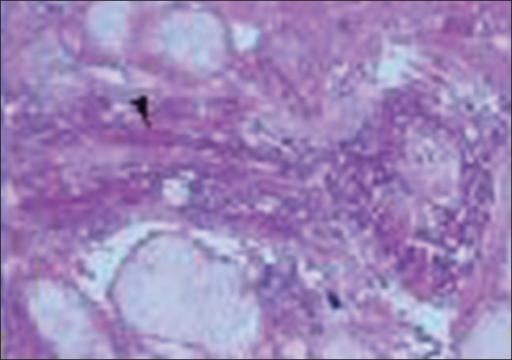 Microphotograph of histopathology section from the lesion (hematoxylin-eosin stain) shows broad aseptate hyphae with frequent right-angle branching suggestive of mucormycosis