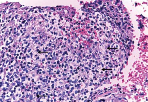 Epidermis with pseudoepitheliomatous hyperplasia, dermis with dense inflammatoryinfiltrate constituted of lymphocytes, plasmocytes, macrophages and some giantmultinucleated cells. Macrophages were observed containing corpuscles withcharacteristics suggesting amastigote forms of Leishmania sp (arrows)