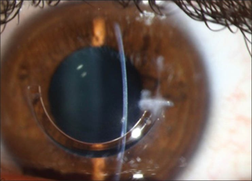 Anterior segment photography of incisional infectious keratitis.